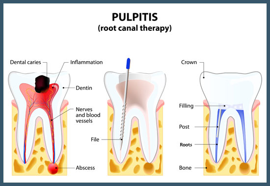 root-canal-treatment-upper-valley-nh-vt-dentist-office
