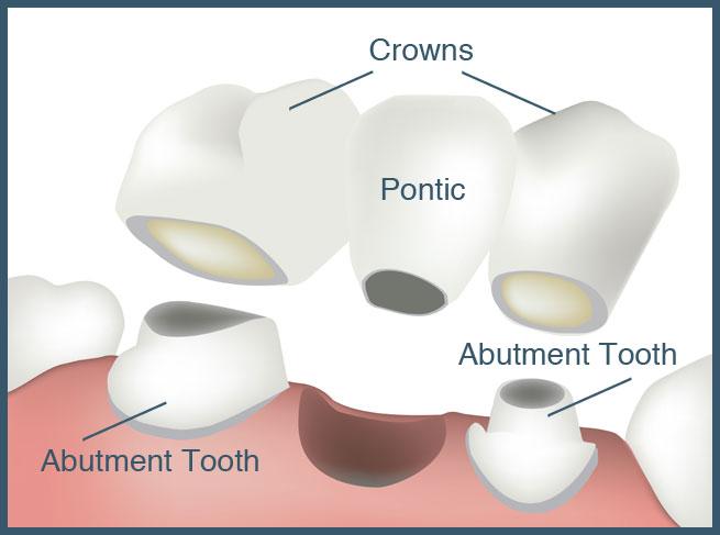 crowns-and-bridgework-upper-valley-nh-vt-dentist-lebanon-nh