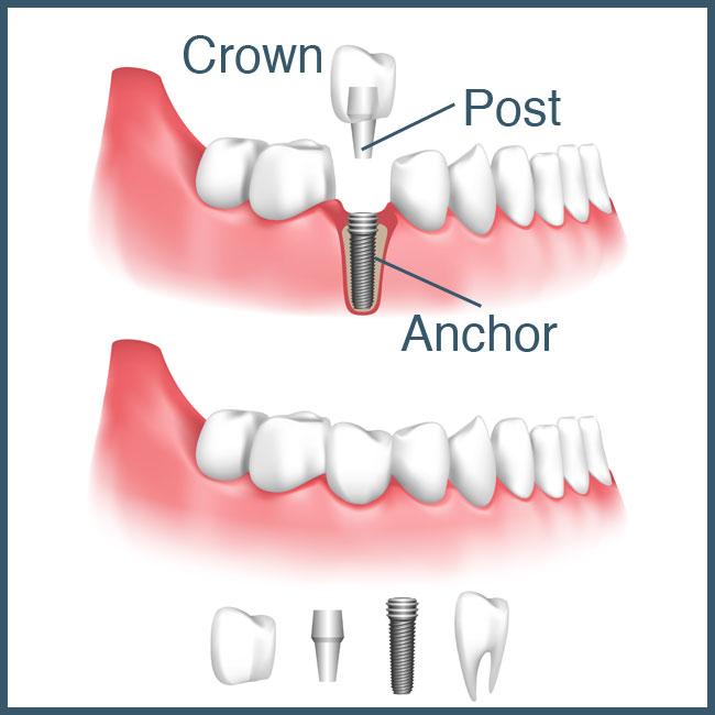 dental-implants-lebanon-nh-hanover-nh-upper-valley-dentist-nh-vt