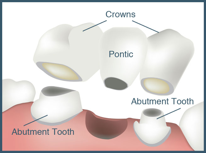 crowns-and-bridgework-upper-valley-nh-vt-dentist-lebanon-nh