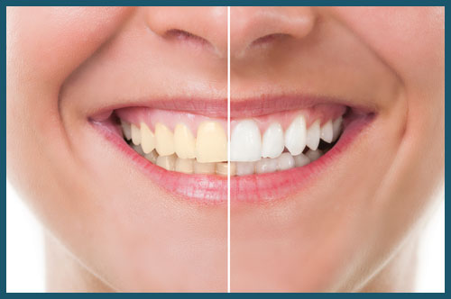 veneers-teeth-whitening-dentist-upper-valley-nh-vt-lebanon-nh-hanover-nh
